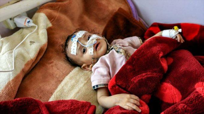 Yemen, OCHA, Unicef, Acled