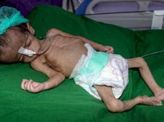 Yemen, niños yemeníes, OCHA, Unicef