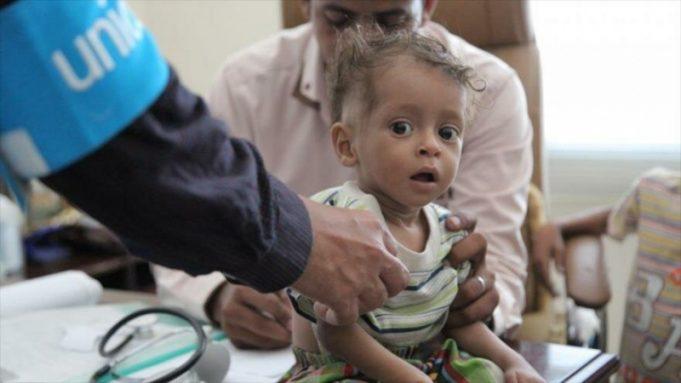 Los niños yemeníes tardarían dos décadas en alcanzar el menor nivel de nutrición